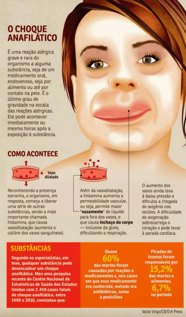 choque-anafilatico